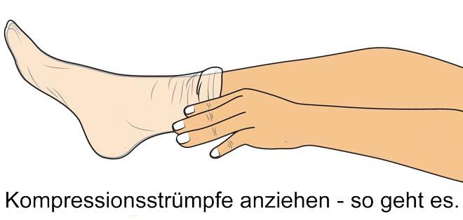 Kompressionsstrümpfe anziehen - www.kompressionsstruempfe-online.de